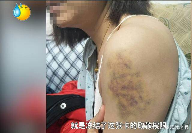 Vết bầm tím chi chít trên người chị Dương Nguyệt.