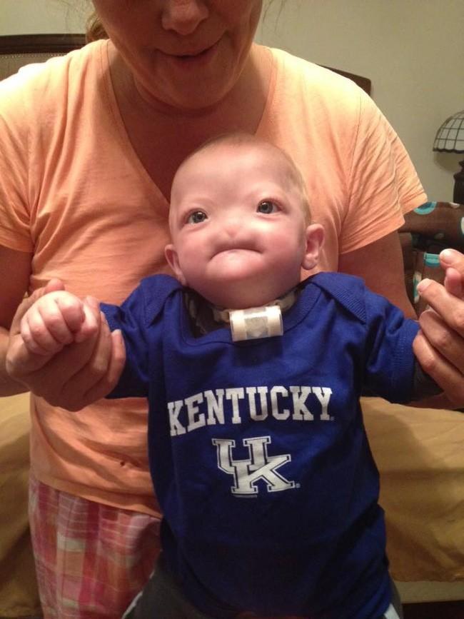 Trường hợp của Eli đã được các bác sĩ ở Anh phê duyệt, em cũng sẽ được phẫu thuật mũi 3D giống như người bạn nhỏ Tessa.