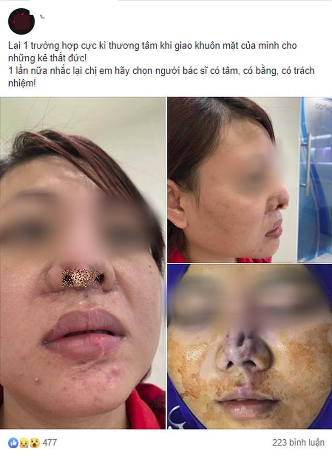 Đẹp đâu chẳng thấy, cô gái công khai chiếc mũi biến dạng, lòi cả sụn sau phẫu thuật thẩm mỹ ảnh 0