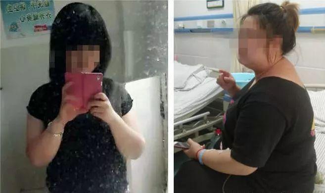Xiaoli trước và sau khi dùng thuốc giảm cân.