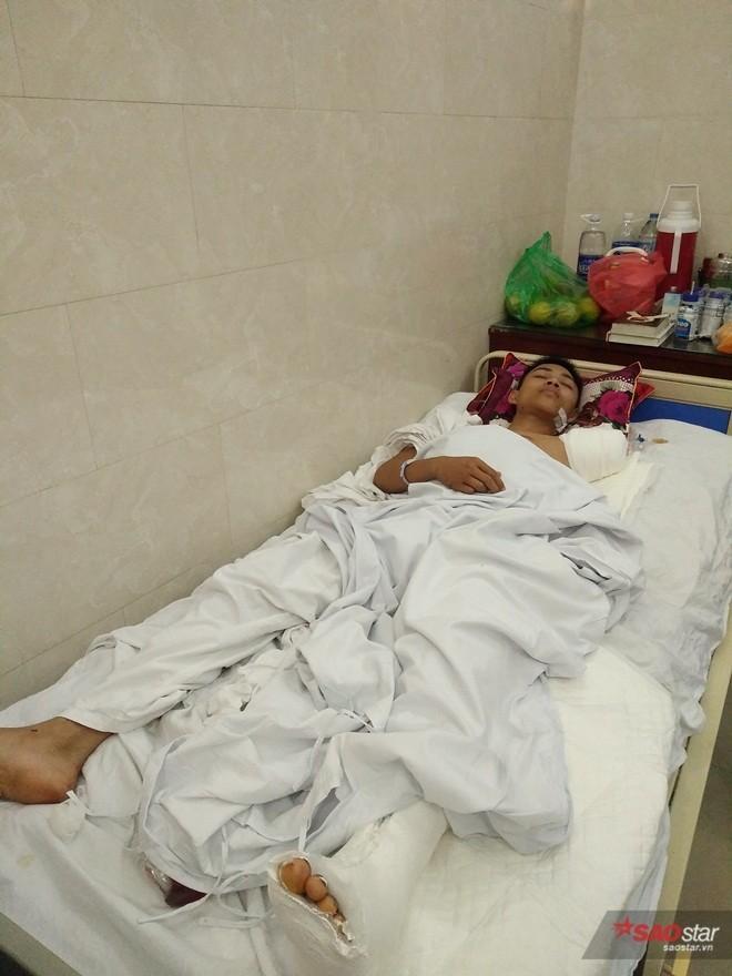Chàng trai Nghệ An mất một tay vì cứu bạn.