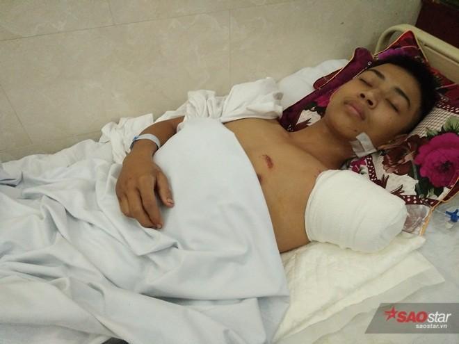 Vì cứu bạn khỏi tai nạn giao thông cho nên 1 cánh tay của Nguyễn Văn Quảngbị đứt.