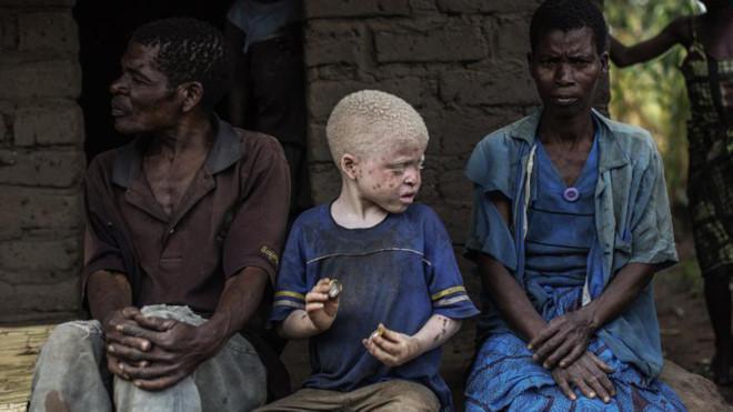 Nhiều đứa trẻ bạch tạng ở châu Phi bị săn lùng và giết hại dã man.