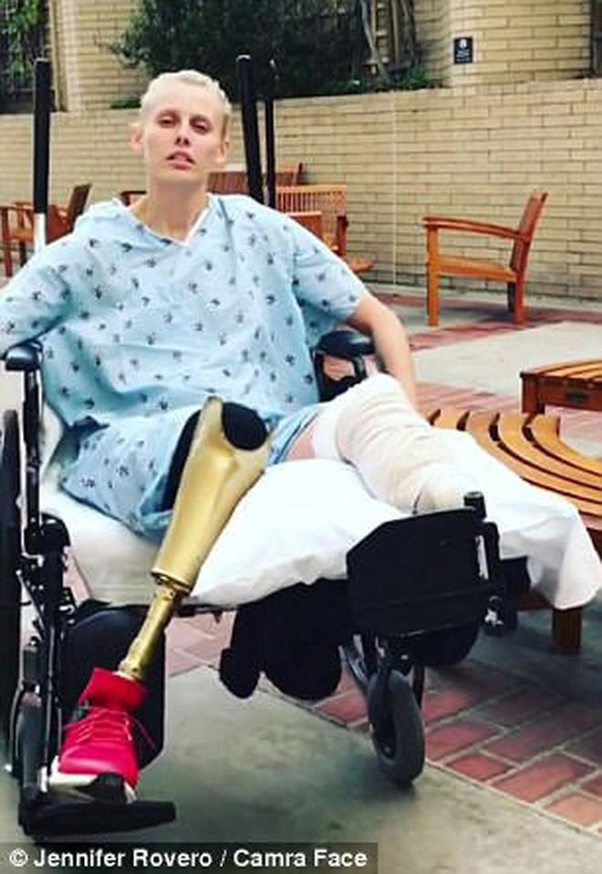 Lauren Wasser đã phải cưa bỏ chân trái vào năm 2012 sau khi gần chết do nhiễm độc từ loại băng vệ sinh siêu dày mà cô sử dụng.
