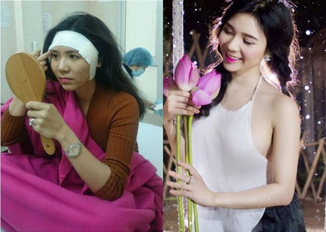 Hậu Người phán xử, diễn viên Thanh Bi trông trẻ trung, xinh đẹp hơn hẳn nhờ can thiệp thẩm mỹ như độn thái dương, phẫu thuật thu gọn cánh mũi.