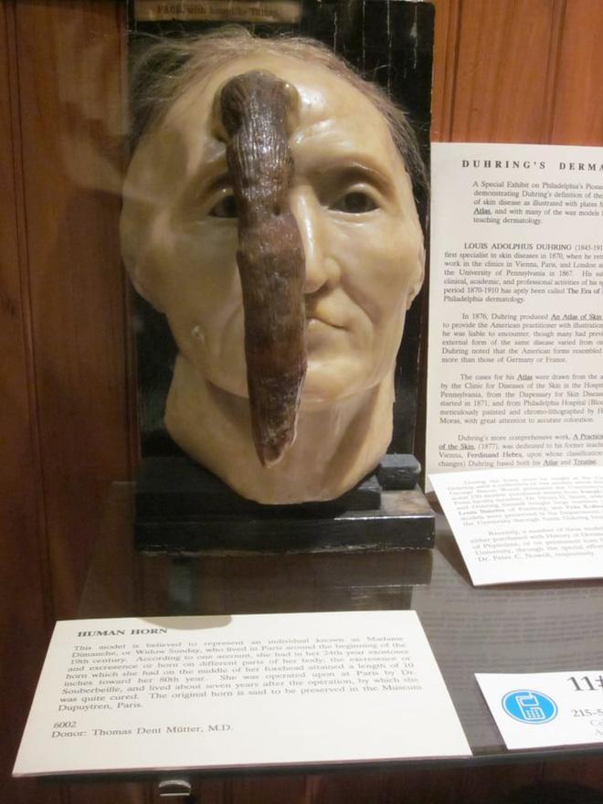 Madame Dimache được biết đến là người có chiếc sừng dài nhất.