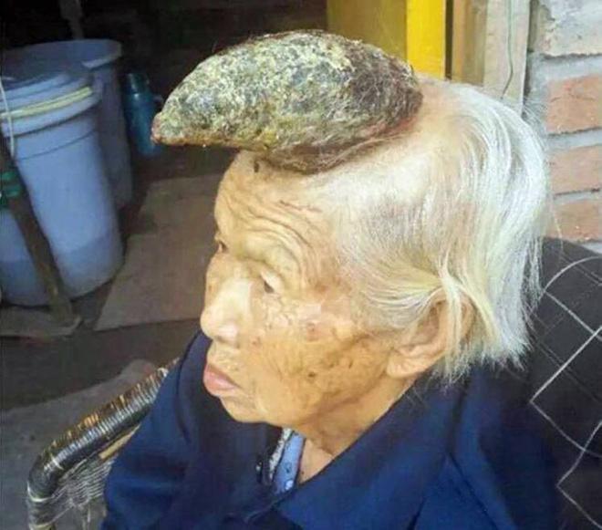 Một cụ bà tại Trung Quốc mọc sừng giữa đỉnh đầu như kỳ lân.