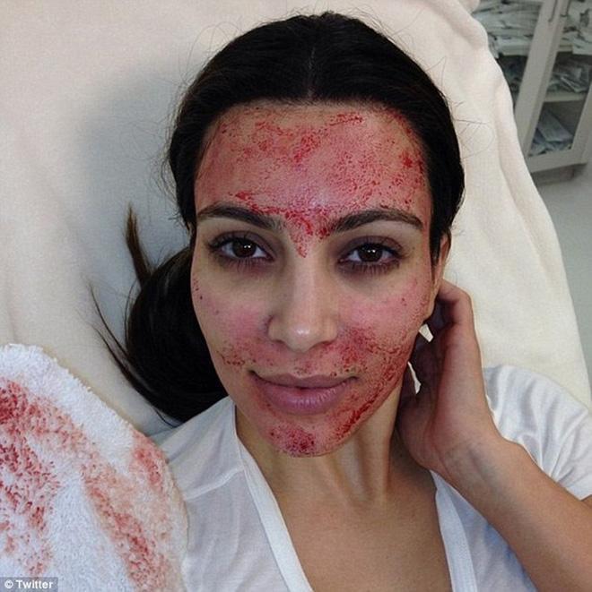 Kim Kardashian cũng từng gây sốc với gương mặt be bét máu khi đi làm đẹp
