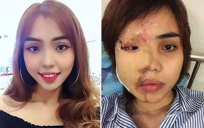Vy trước và sau khi bị chồng sắp cưới tạt axit vào mặt.