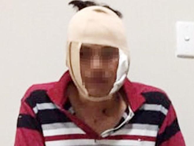 Đại úy Nhiều bị đối tượng cầm cốc bia đánh vào mặt gây thương tích do ôm hận bị phạt vi phạm giao thông. Ảnh: Zing
