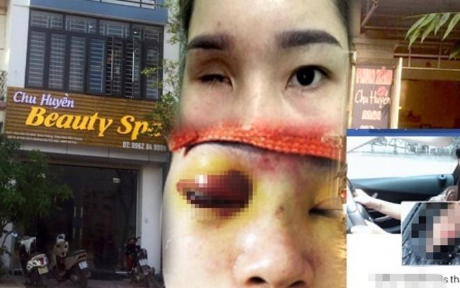 Sau khi nâng mũi bằng biện pháp tiêm Filler tại cơ sở thẩm mỹ của chị Chu Thị Huyền địa chỉ tại Đức Thắng, huyện Hiệp Hòa, tỉnh Bắc Giang, chị Hoàng T. L. đã bị mù mắt phải. Ảnh Báo Giao Thông