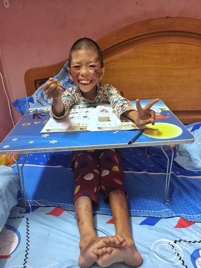 Cô gái Hà Nội bất chấp bị kỳ thị vẫn nhận nuôi bé gái lở loét khắp người và câu chuyện xót xa chạm đến trái tim ảnh 1