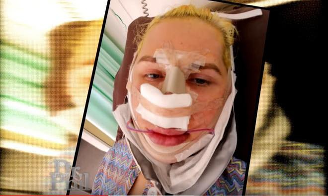Hình ảnh quá trình phẫu thuật thẩm mỹ của Oli được anh chia sẻ trên sóng truyền hình