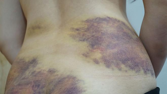 Những vết thương tích trên cơ thể nạn nhân. Ảnh: báo Thanh Niên
