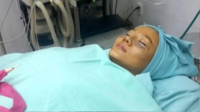"""Dương Yến Ngọc từng sở hữu gương mặt thiếu cân đối do mũi bị hểnh, sóng mũi quá cao, đầu mũi to nên phải nhờ đến sự tác động của """"dao kéo""""."""