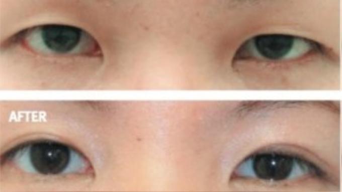 Hình minh họa thành phẩm sau khi làm thủ thuật cắt mắt hai mí.