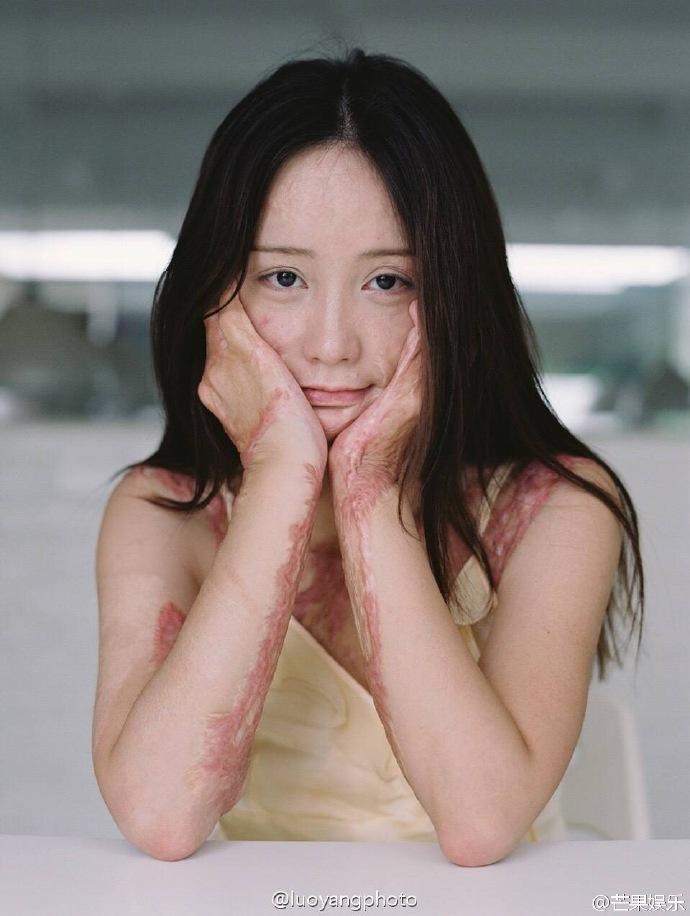 Nữ sinh Trung Quốc với những vết sẹo trên cơ thể gây chú ý cộng đồng mạng. Xót xa với loạt ảnh cơ thể chằng chịt sẹo của nữ sinh Châu Nam vì nam sinh...cuồng yêu
