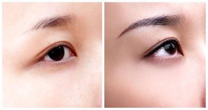 Hình ảnh trước (trái) và sau (phải) khi phun chân mày.