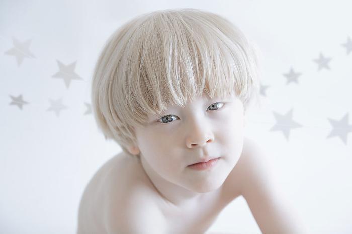 Vẻ đẹp như thiên thần của các em nhỏ mắc bệnh bạch tạng.