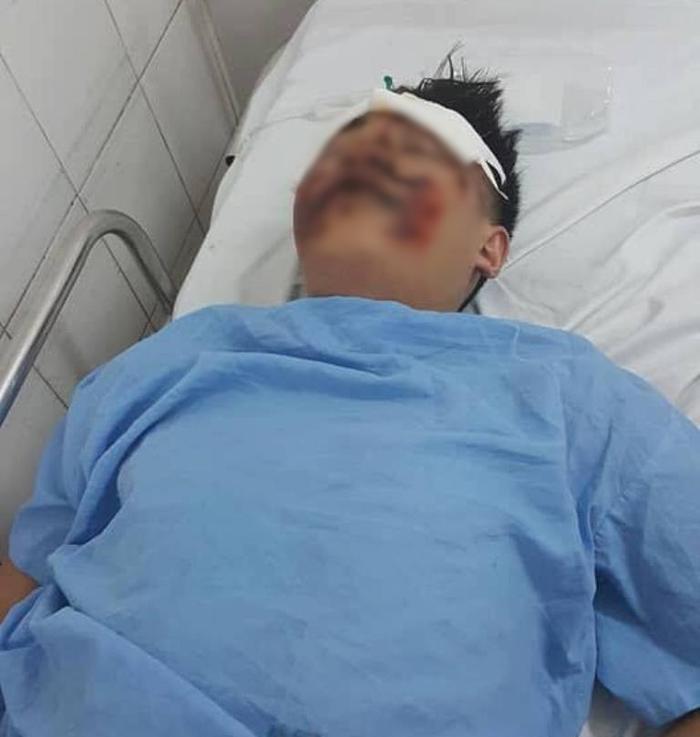 Một trong hai sinh viên bất tỉnh, chấn thương sọ não sau tai nạn.