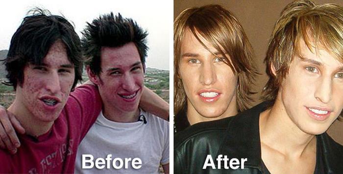 Ngoại hình của họ trước và sau khi phẫu thuật.