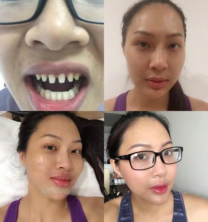 Những hình ảnh này cho thấy người đẹp đã tu sửa phần lớn khuôn mặt của mình.