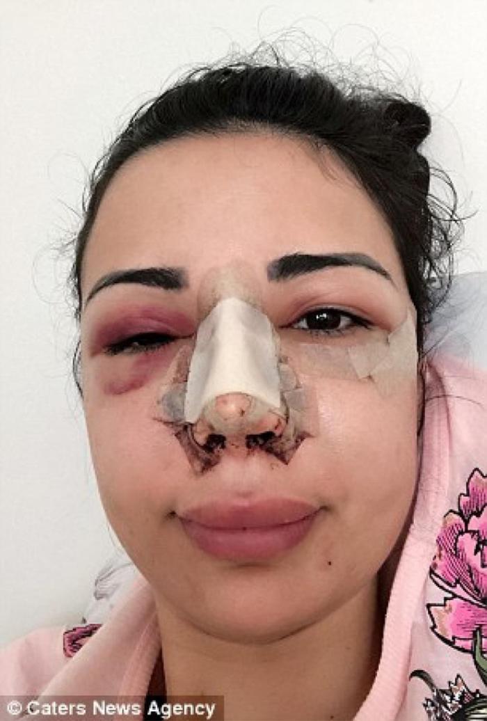 Chi hơn 11 tỉ đồng để thẩm mỹ giống Kim Kardashian, cô gái này khiến ai cũng bất ngờ với diện mạo sau dao kéo.