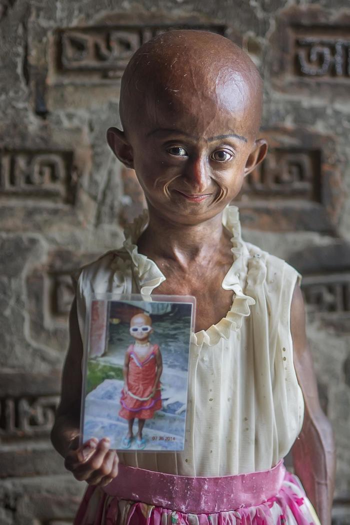 Quá sợ hãi, cha mẹ Nitu lập tức đưa em tới một bệnh viện tuyến trên ở Sylhet. Sau khi làm các xét nghiệm, các bác sĩ khuyên anh chị Hasan nên đưa con gái đến Dhaka để được điều trị tốt hơn bởi em mắc bệnh hiếm Progeria khiến cơ thể già đi nhanh chóng.