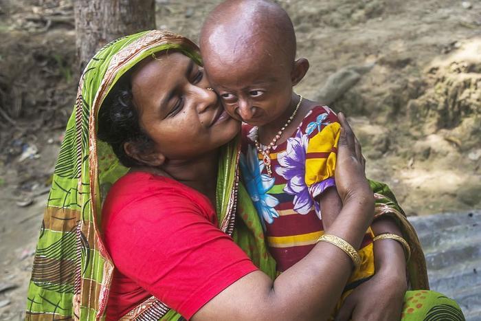 Bé gái Taqlima Jahan Nitu, 10 tuổi rưỡi, mắc Progeria, một bệnh di truyền hiếm gặp vớitriệu chứng bề ngoài là lão hóa xuất hiện rất sớm. Em sinh ngày 10/9/2007 tại Habiganj, Bangladesh. Cha của em, Kamrul Hasan, làm cả ngày bên ngoài còn mẹ Josna ở nhà lo công việc cơm nước. Nitu là con thứ 4 trong số 6 người con của anh chị Hasan.