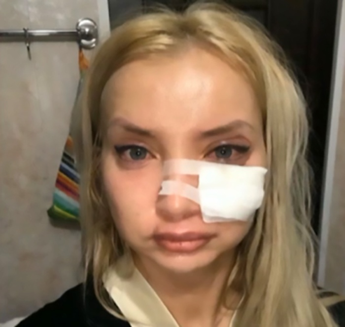 Cô gái trẻ có bờ môi như thể 'sắp nổ tung' vì tiêm filler rẻ tiền