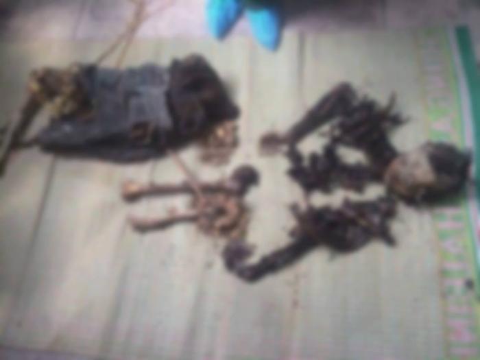 Một tử thi đã phân hủy chỉ còn bộ xương.