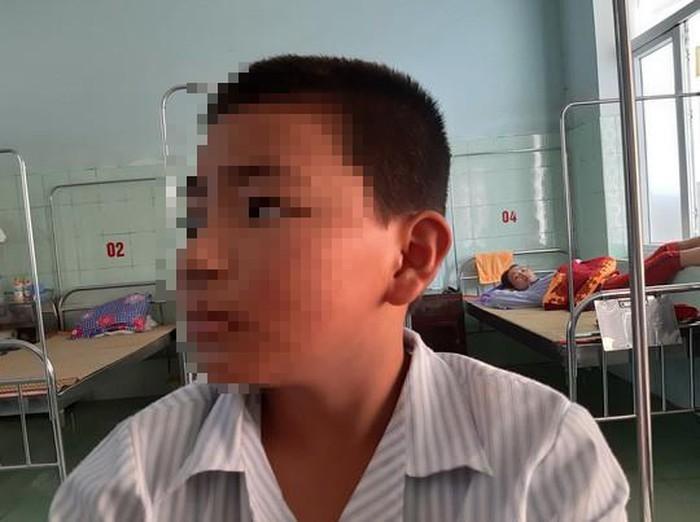 Học sinh N. – người bị cô giáo cho bạn tát 231 cái vào mặt. (Ảnh: Người lao động)