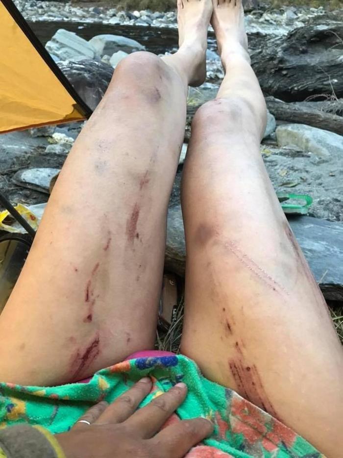 Cô Wu từng bị thương vì một cú ngã trước đó.