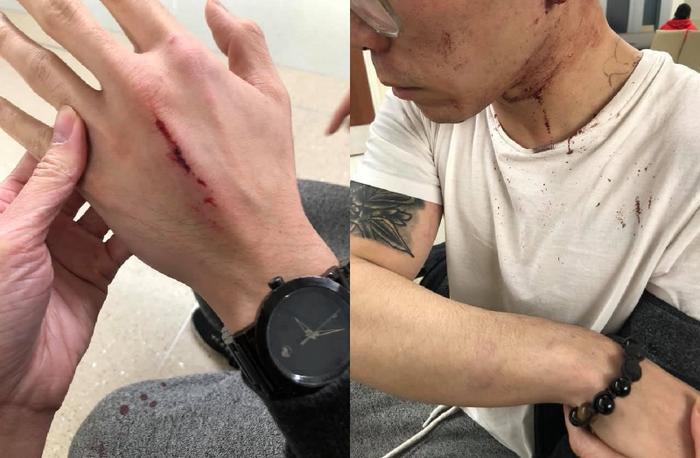 Anh Mike có nhiều thương tích ở đầu, bàn tay và cánh tay.