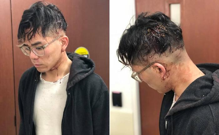 Anh Michael Nguyen bị chủ nhà hàng đánh đập dã man khi xin nghỉ việc.