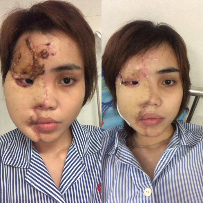 5 tháng điều trị, chị V phải trải qua 9 lần phẫu thuật.