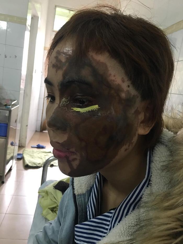 Vy bị tạt axit cháy xém một nửa khuôn mặt.