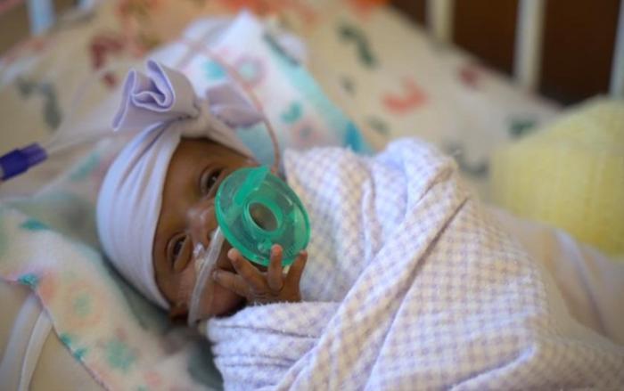 Em bé nhỏ nhất thế giới nặng 245 gram, chỉ bằng một quả táo