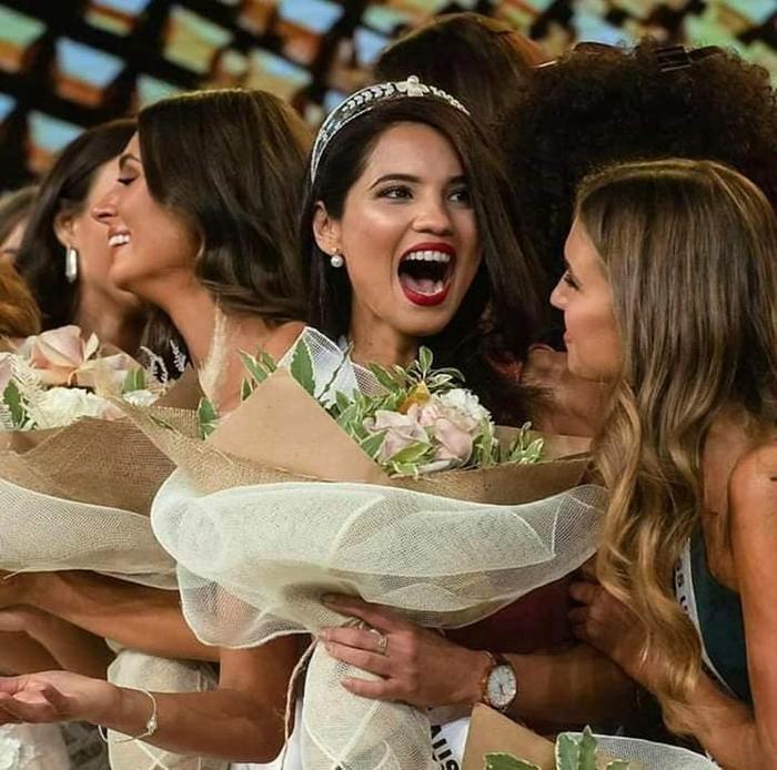 Nhan sắc của tân Hoa hậu Hoàn vũ Úc không được lòng fan hâm mộ.