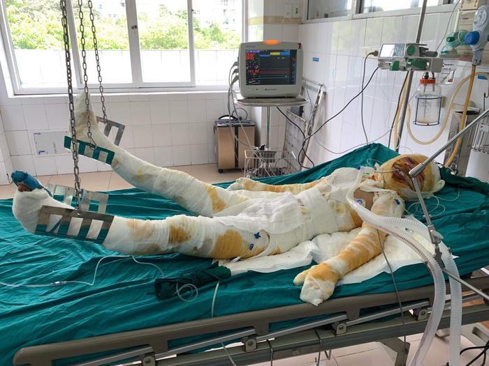 Một nạn nhân của vụthiếu phụ cùng con gái 2 tuổi bị người tình tẩm xăng thiêu sống đang được cấp cứu tại bệnh viện trong tình trạng nguy kịch.