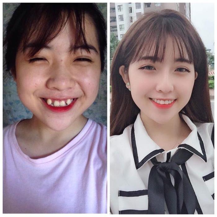 Thu Trang trước và sau khi làm răng.