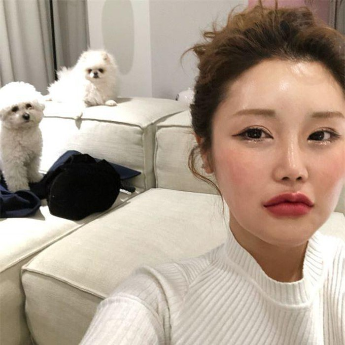 Gương mặt sưng phù và phần má được tiêm căng cứng của Kim SoHee