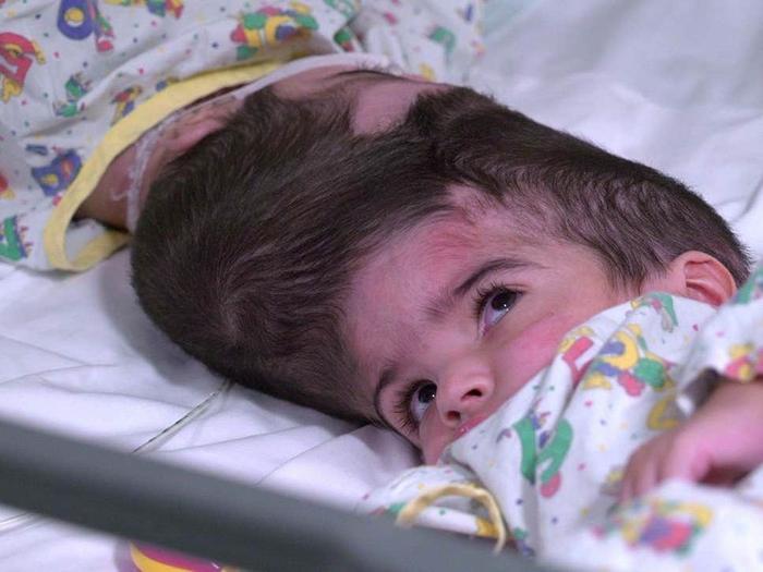 Safa và Marwa Ullah, 2 tuổi, sinh ra tại Charsadda, Pakistan trước khi được phẫu thuật tách đầu tại bệnh viện Great Ormond Street