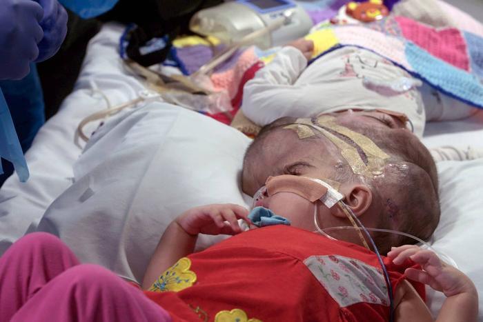 Safa và Marwa trước khi được phẫu thuật tách đầu.