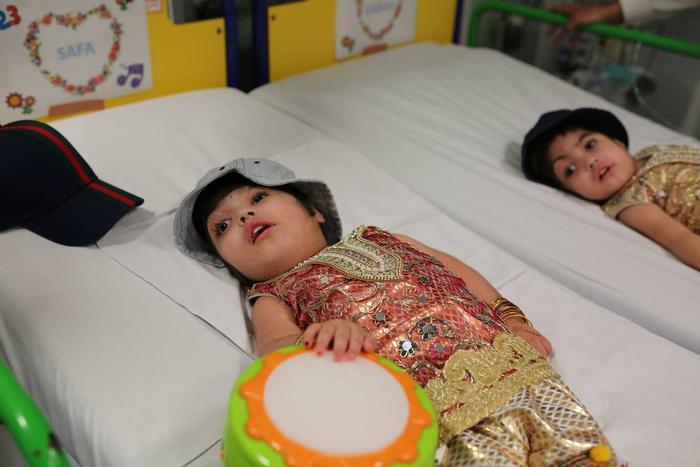Safa và Marwa sau khi được phẫu thuật tách đầu.