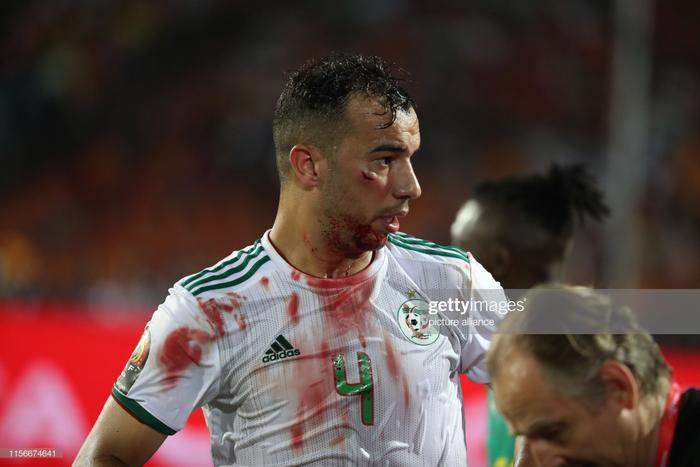 Chứng kiến chấn thương củaDjamel Benlamri, nhiều cầu thủ đã không dám nhìn vào anh. Vết thương nhỏ nhưng khá sâu, khiến máu chảy không ngừng và chiếc áo củaDjamel Benlamri cũng đẫm màu máu.