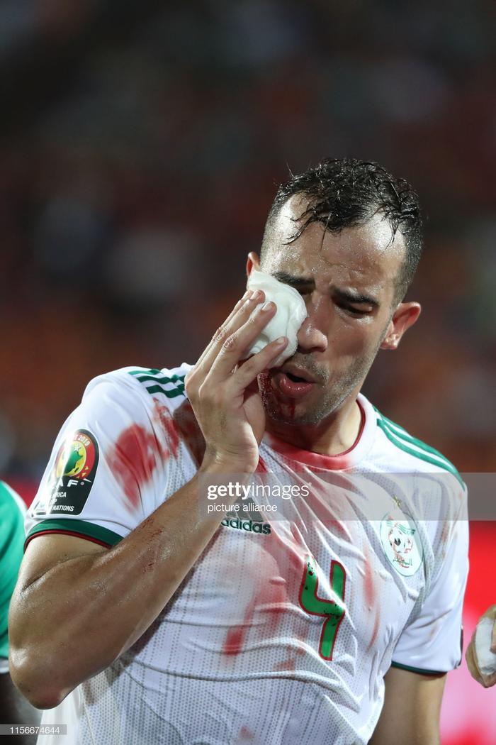 Phút 40 của trận đấu, thủ quânDjamel Benlamri của Algeria đã có pha va chạm cực mạnh với tiền đạo Senegal, dẫn đến việc rách một vùng da , máu chảy be bét khuôn mặt.