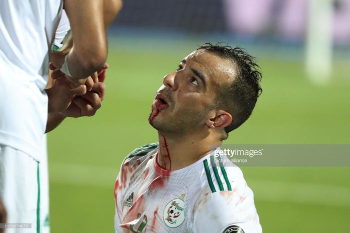 Sẽ là không ngoa khi nói rằng, người Algeria đã làm tất cả để giành chức vô địch CAN 2019. Thậm chí, họ đã phải đổ cả máu để giành lấy vinh quanh cho dân tộc.