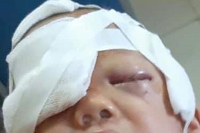 Bé trai ở Thái Nguyên bị chó nhà tấn cônggãy xương mũi được điều trị tại bệnh viện. (Ảnh: Zing.vn).