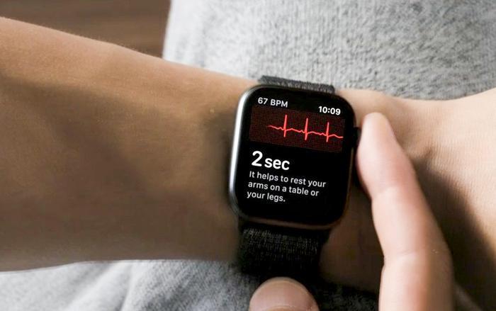 Tính năng điện tâm đồ trên Apple Watch không phải hoàn toàn có lợi